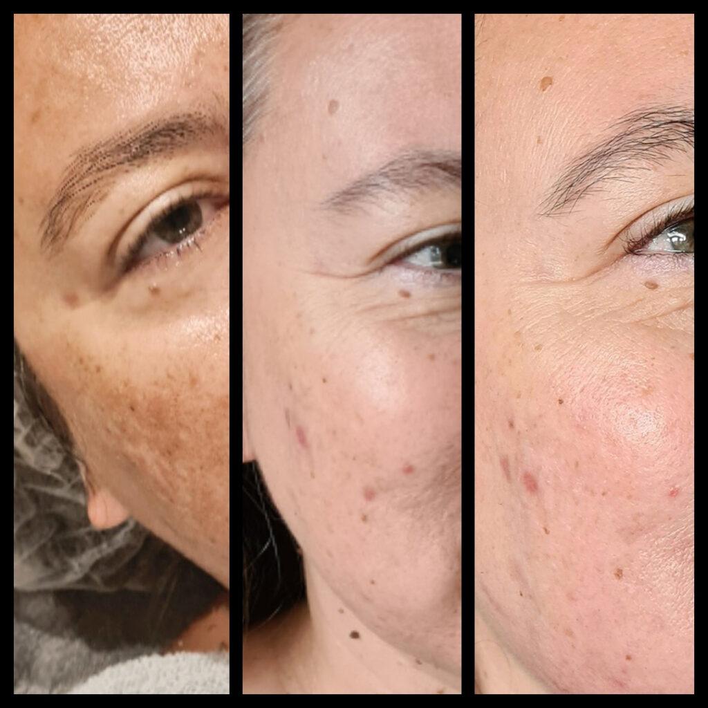 NIVEA Cellular Luminous630: Het perfecte duo voor de huid die te maken heeft met pigmentvlekken.